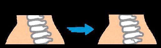 第5頚椎分離症