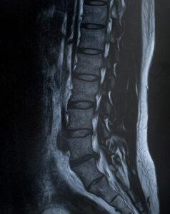 MRIの写真。検査部位は腰
