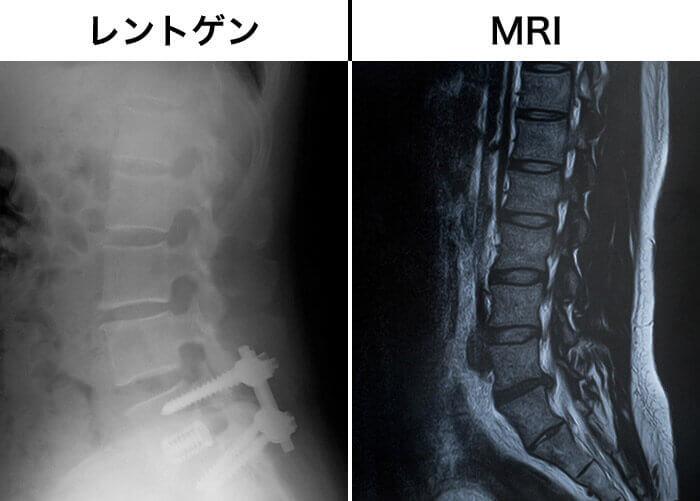 MRIとレントゲンの違い
